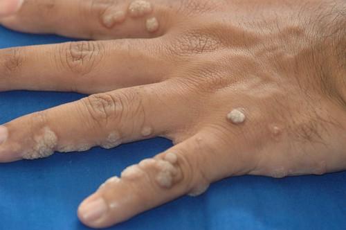 a papilloma cauterizációja után kezelés egyetlen kondilómával