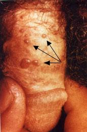 genitális fityma condyloma in)