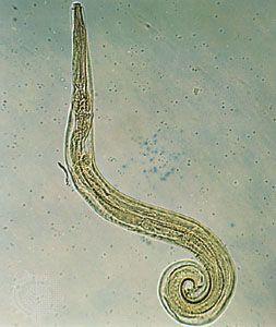 ami enterobiosis vagy pinworm