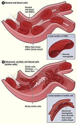 vérszegénység ziekte)