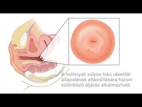 hpv rák a torok kezelésében)
