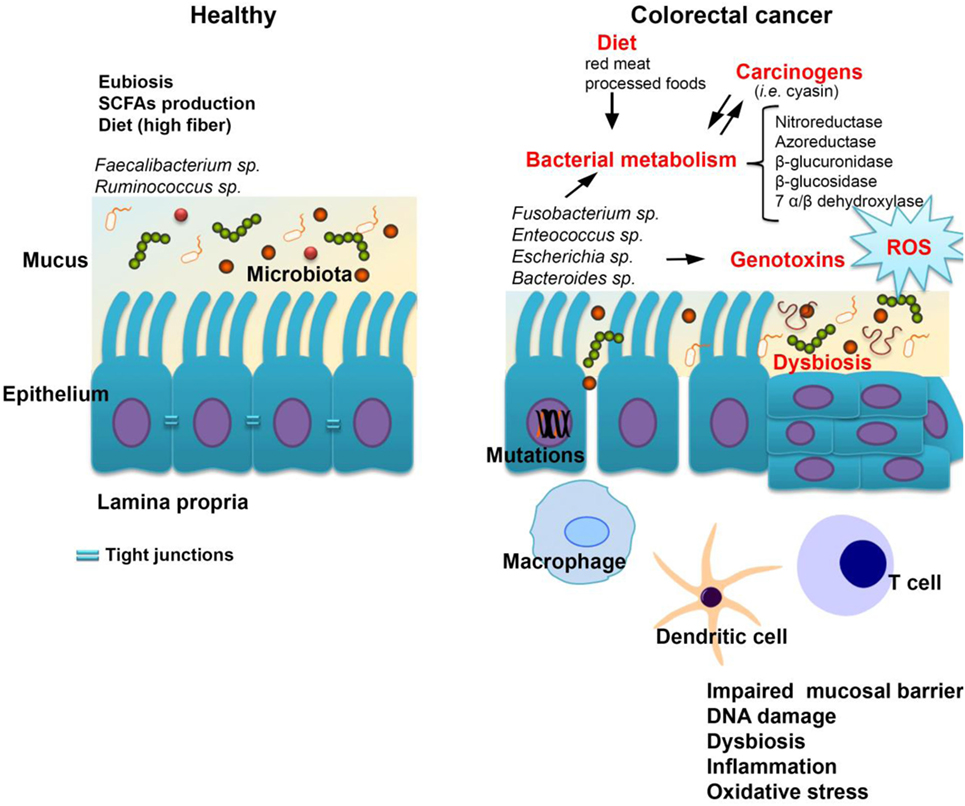 Vékonybél dysbacteriosis