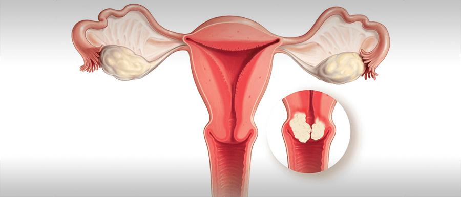 A nőgyógyászati leletek jelentése és értelmezése I.