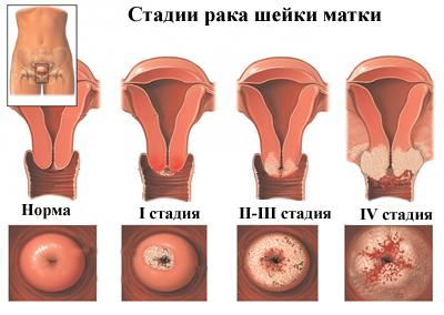 A humán papillomavírus és a szájüregi daganatok