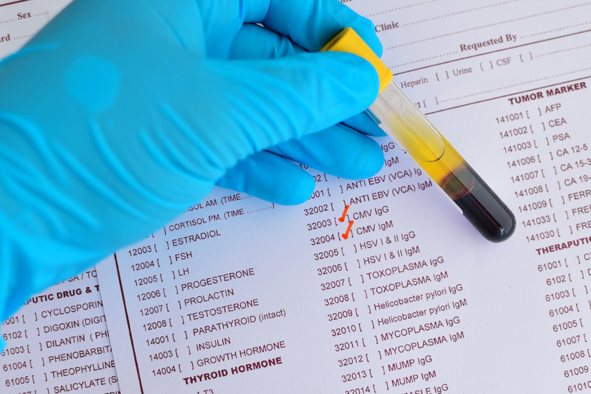 Laborvizsgálatok, Toxoplazma segédanyagok