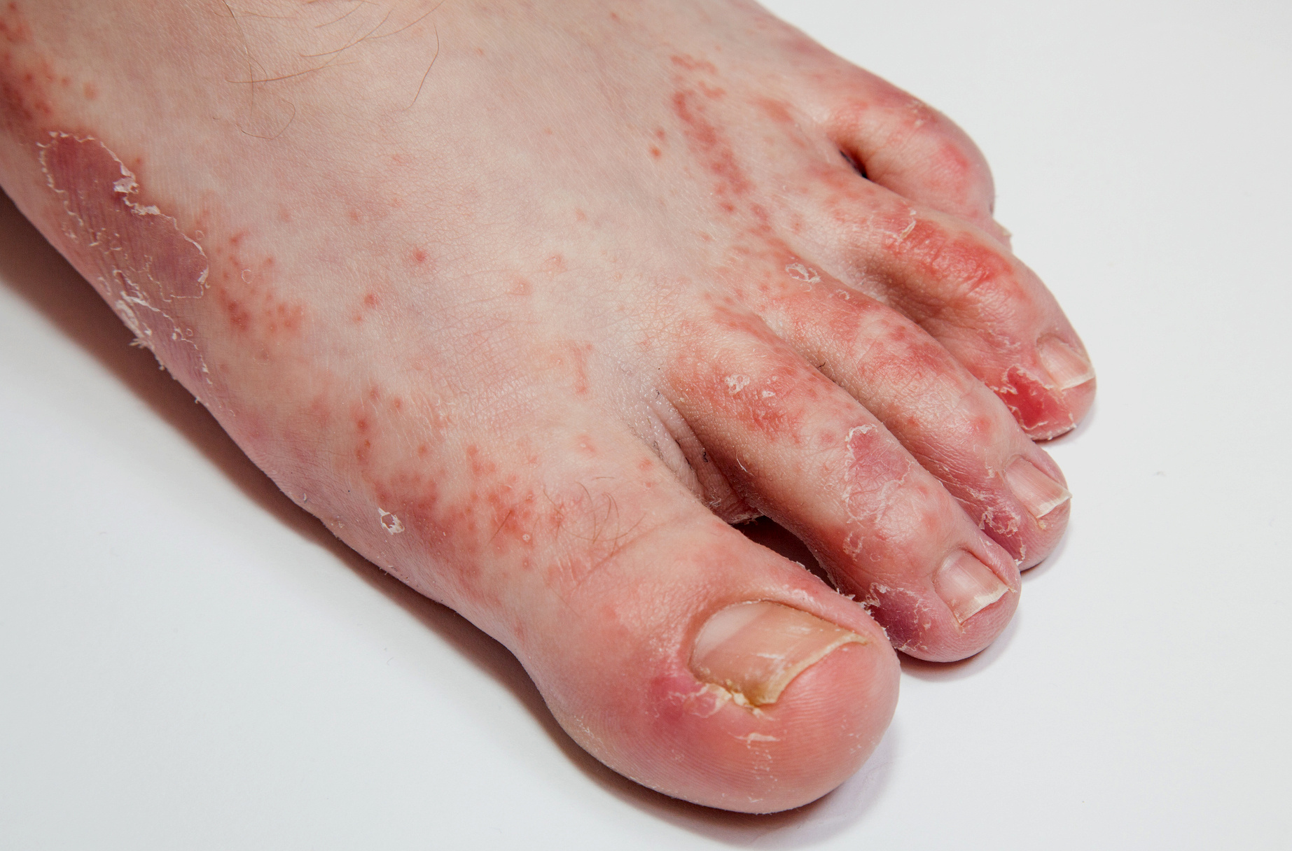 hólyagok a lábujjak között)