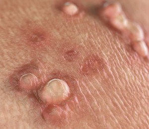 Giardien katze naturlich behandeln, Diéta a Lamblia allergiára » katerinavendeghaz.hu