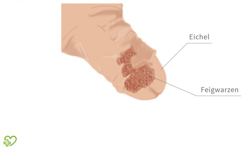 hpv warzen behandeln papillomavírus oeil