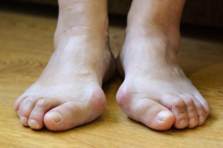 növekszik a lábujjak kezelése között