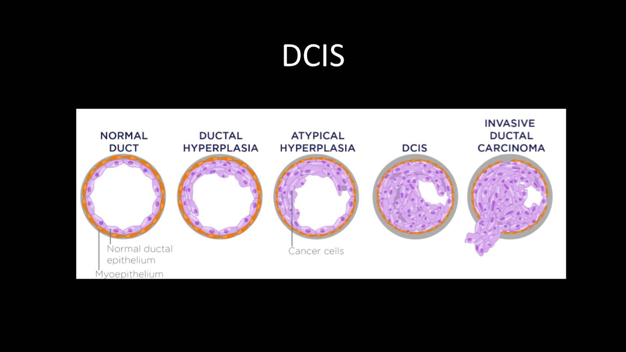 papilloma dcis-sel
