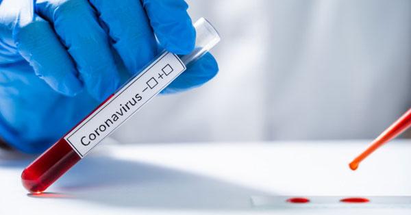 pozitív teszt a papilloma vírusra a legjobb gyógymód a condyloma