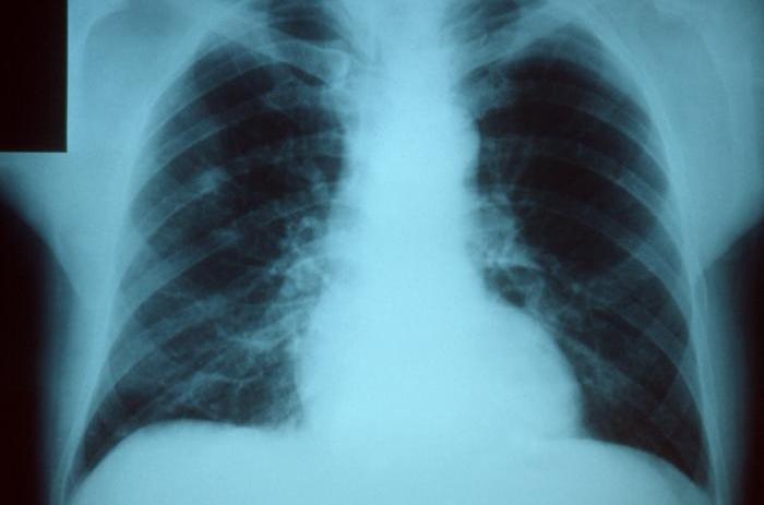 Tüdőrák – Wikipédia