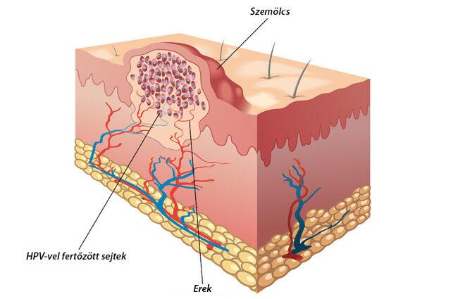 vírusos papilloma esik